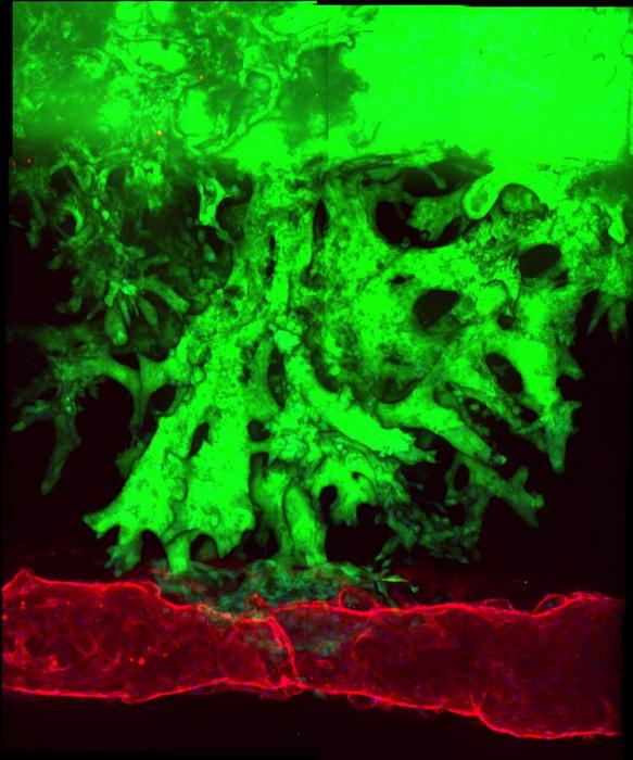 Рак поджелудочной железы захватывает кровеносные сосуды