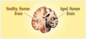 У жертв ожирения мозг усыхает на 10 лет быстрее нормы